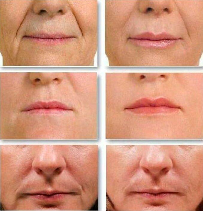 Как замаскировать носогубные складки макияжем